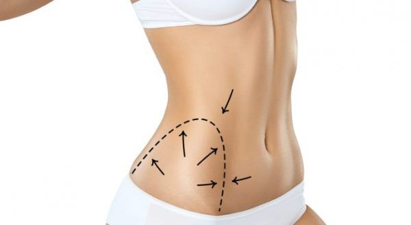 photodune 22633661 woman torso in underwear with medical marks for plastic surgery or liposuction xl 2